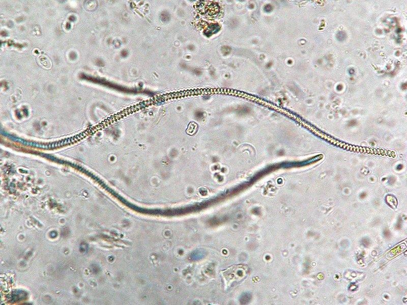 Micro algue spiruline